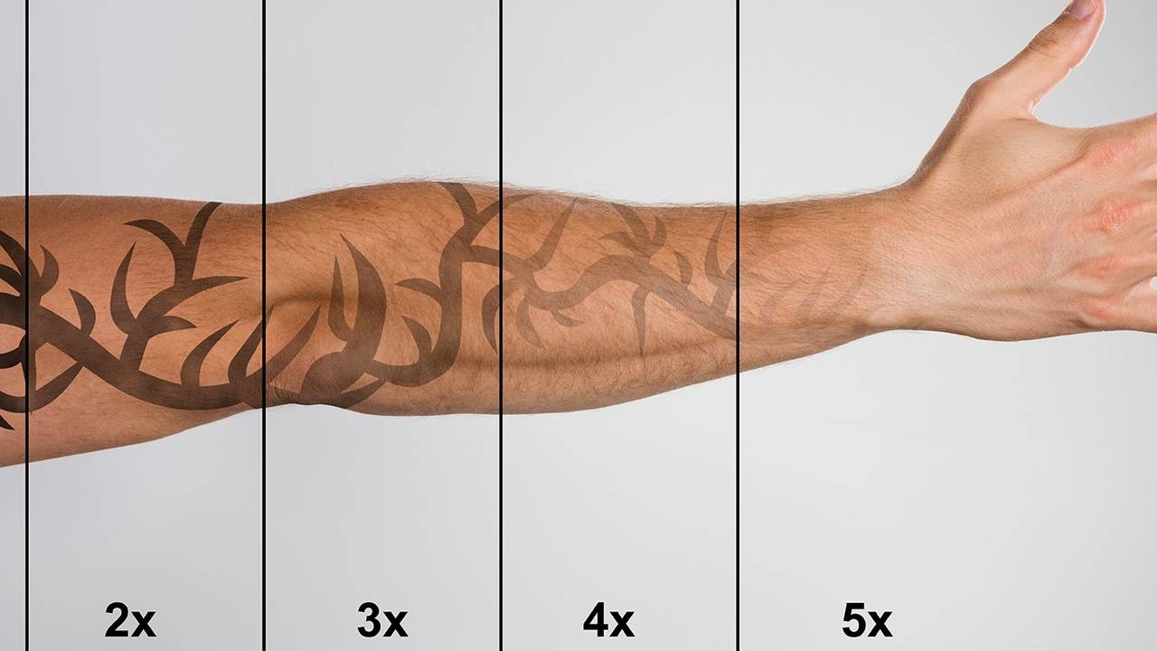 Laser Tattoo Removal Shops Tattoo Removal