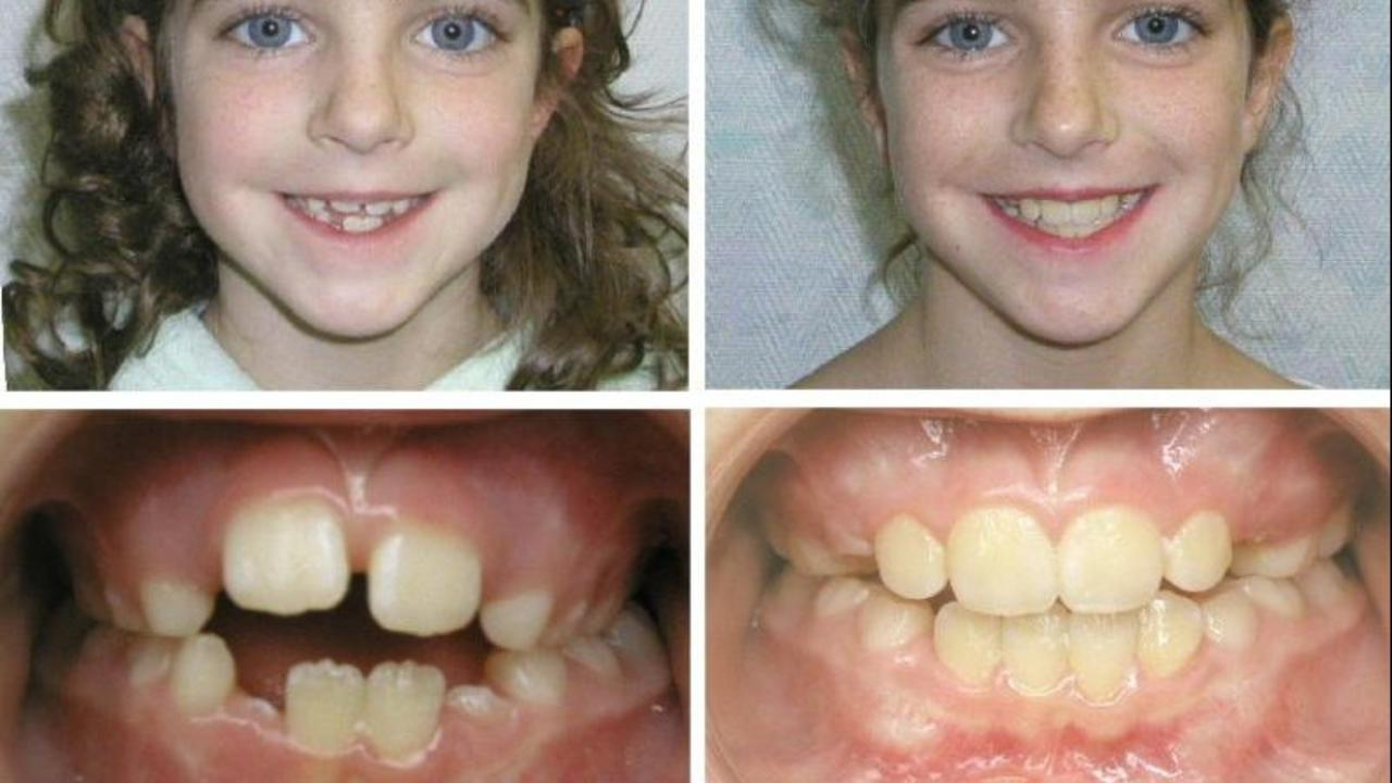 Functional Orthodontics Versus Traditional Orthodontics