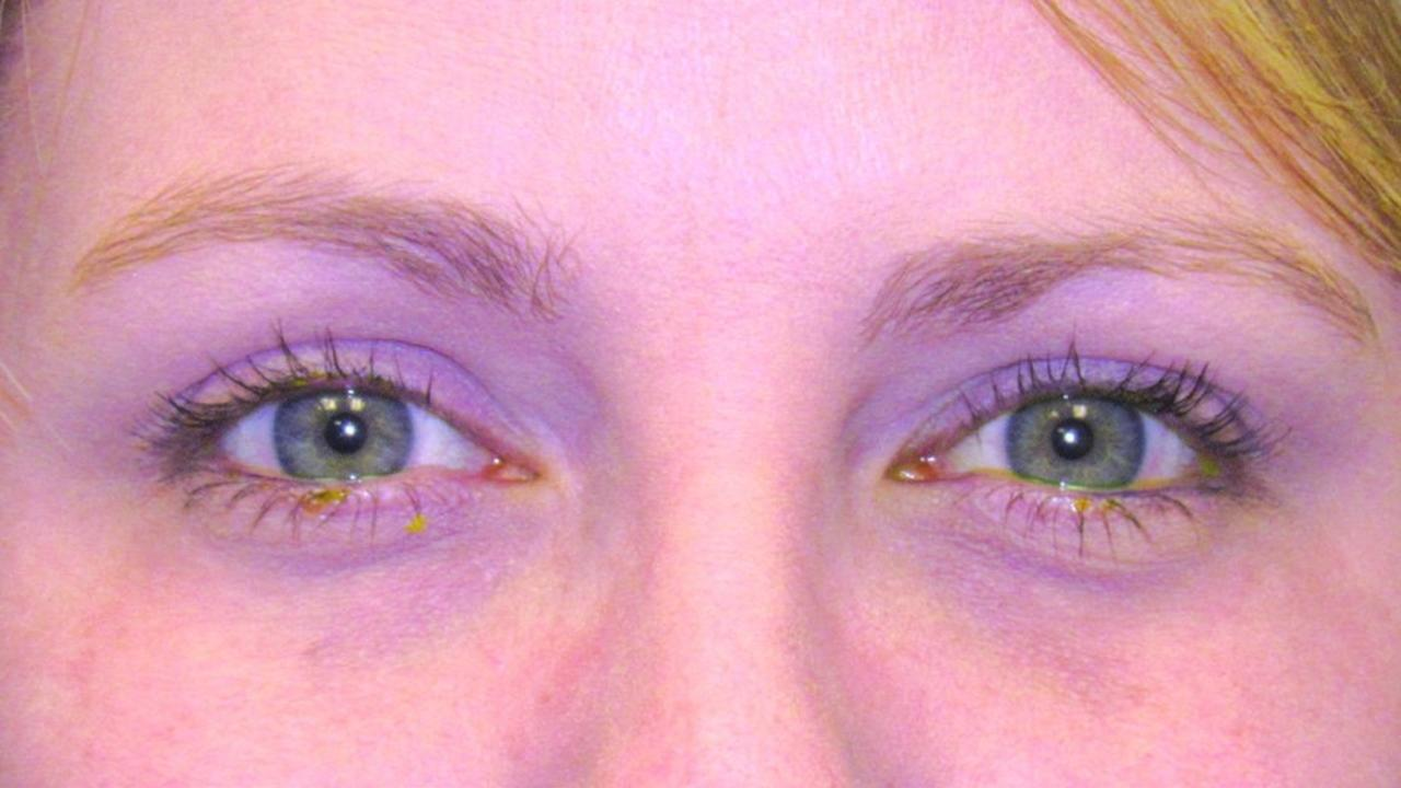 Dry Eye blog for patients to learn tips and tools for