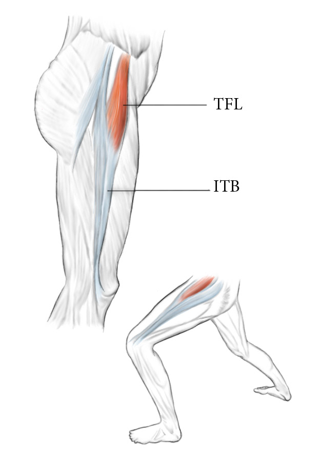 TFL muscle diagram