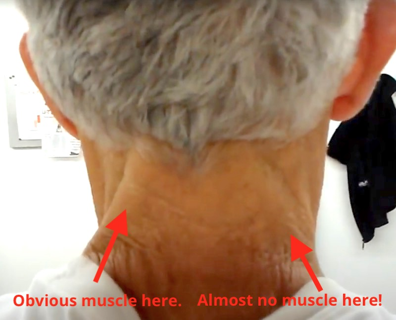 Meme about muscle asymmetry in the neck.