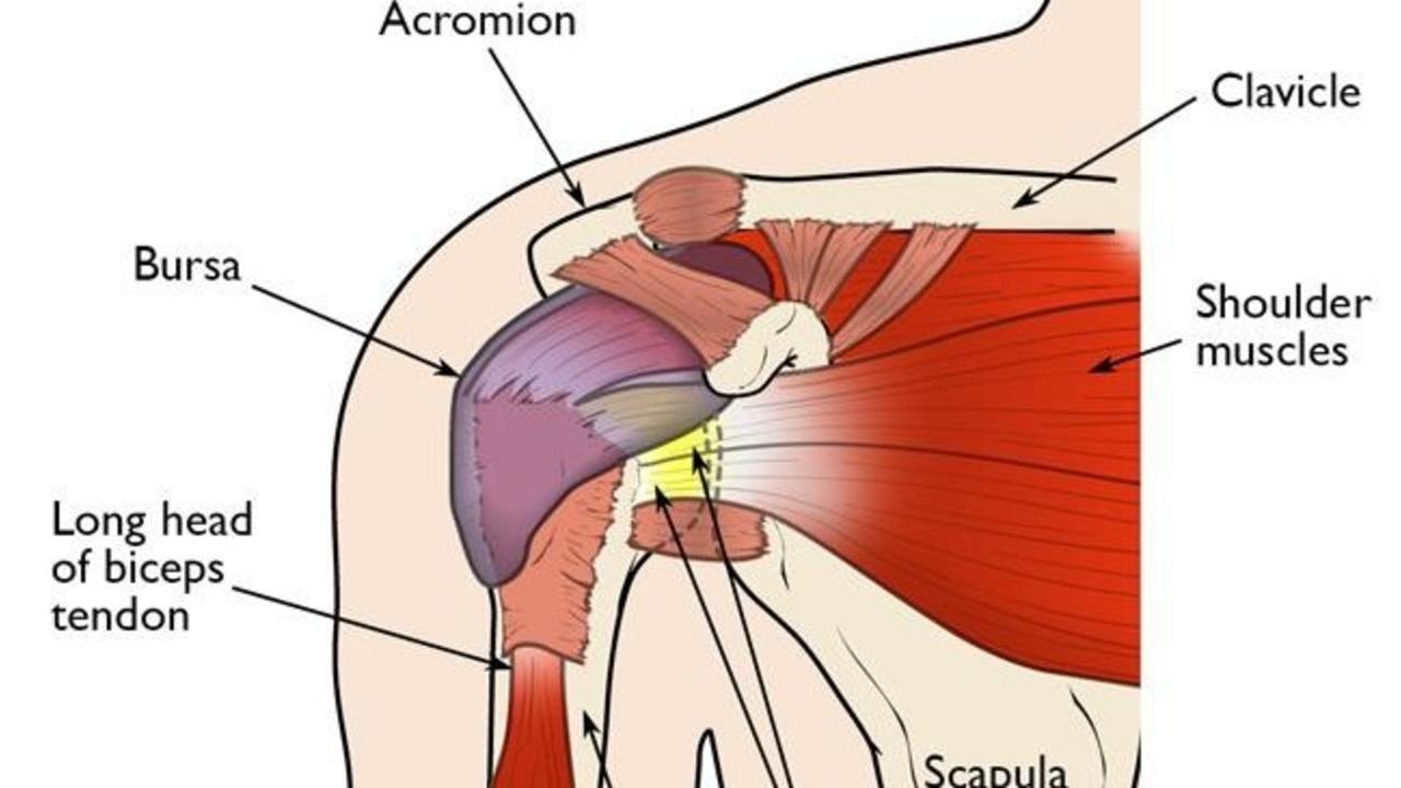 How To End Shoulder Impingement