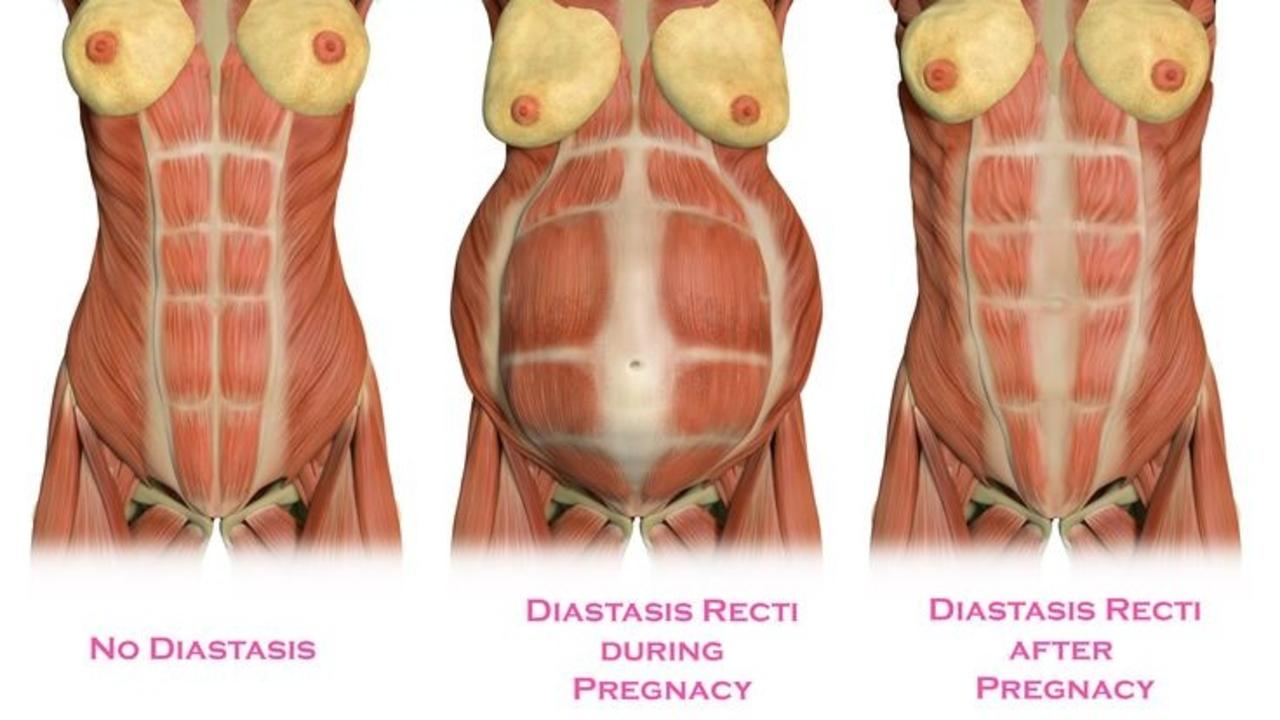 Twwo2monsbwyv8i7qr8p diastasis recti