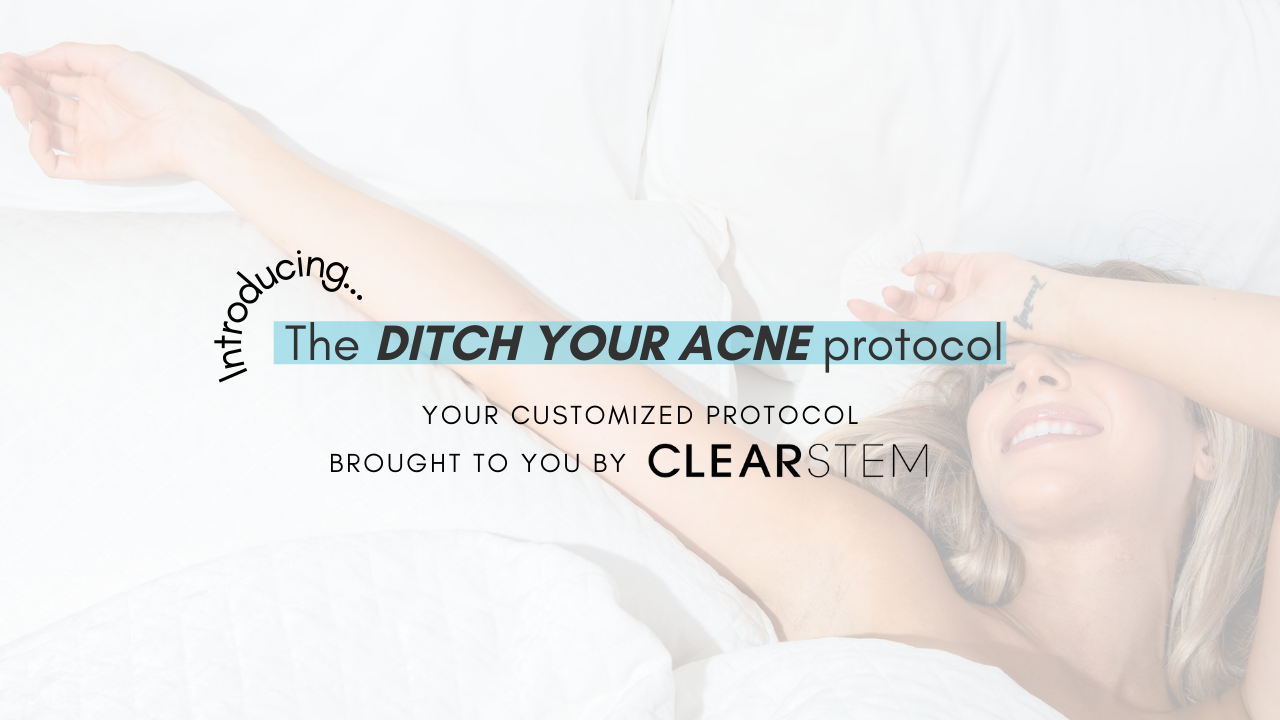 Kmfneaw9s9tbugzwjdov ditch your acne product page graphics 1
