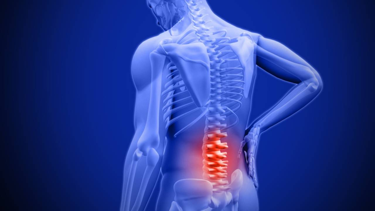Vjsmrigesusp5mapm0qg being active may reduce risk of chronic low back pain financial ...
