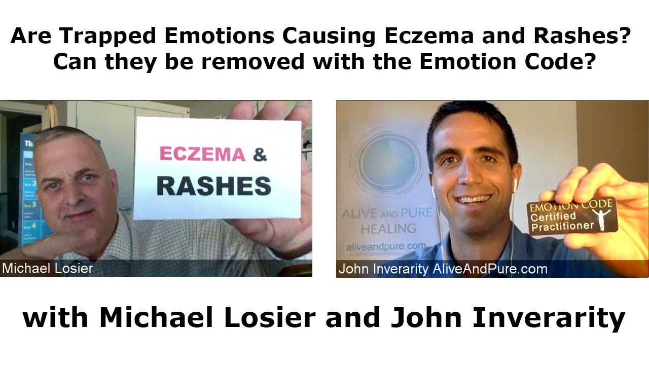 Episode 51 Are Trapped Emotions Causing Eczema And Rashes