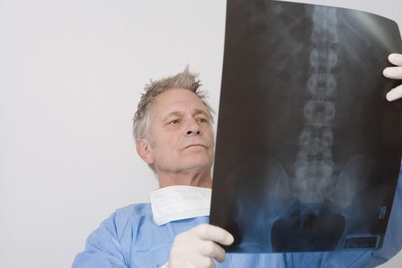 chiropractor looking at hunchback posture x-ray