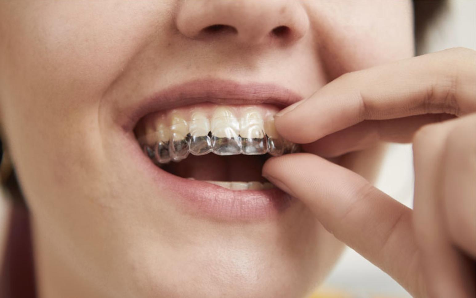 Eine Zahnschiene wird bei einer lächelnden Frau eingesetzt