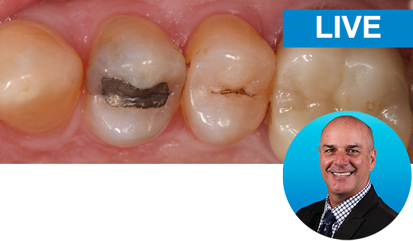 Mastering the Class II restorations with Dr. Marc Geissberger: Live