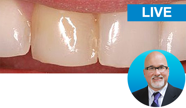 Restoring the discolored central incisor with Dr. Bob Margeas: Live