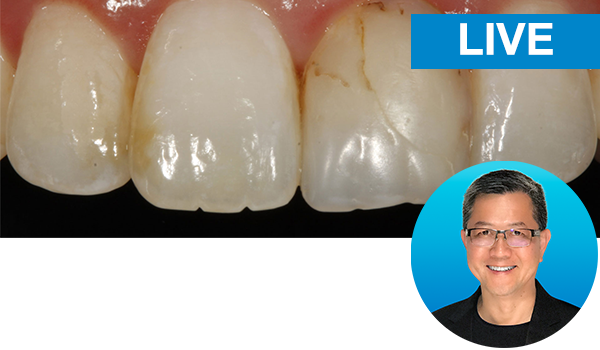Simple concepts to shape and polish anterior composites to rival porcelain with Dr. David Chan: live