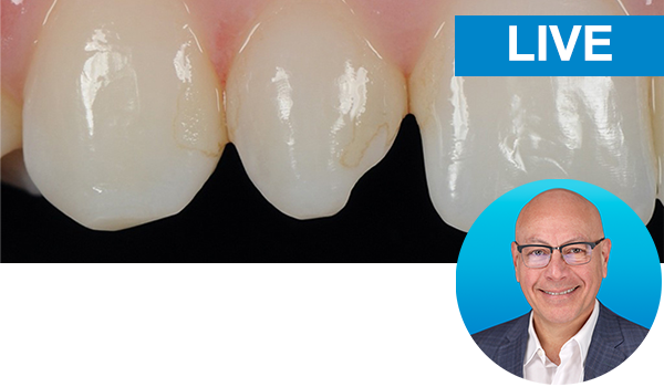 Esthetic Peg Lateral and Class II Direct restorations with Dr. Marcos Vargas: Live