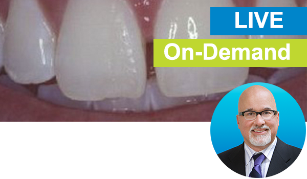 Freehand Diastema Closure: Live with Dr. Bob Margeas