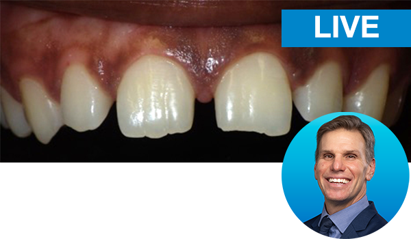 Predictable Diastema Closures Using the Bioclear Method