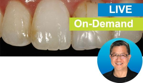 Simple Concepts to Shape and Polish Anterior Composites to Rival Porcelain: Live with Dr. David K. Chan