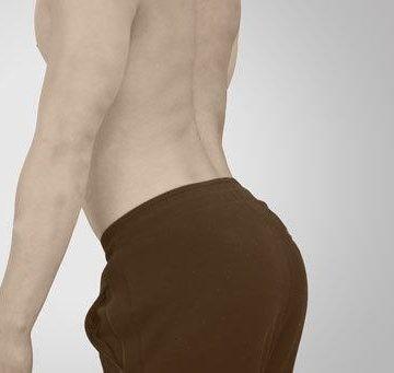 hyperlordosis extension from anterior pelvic tilt