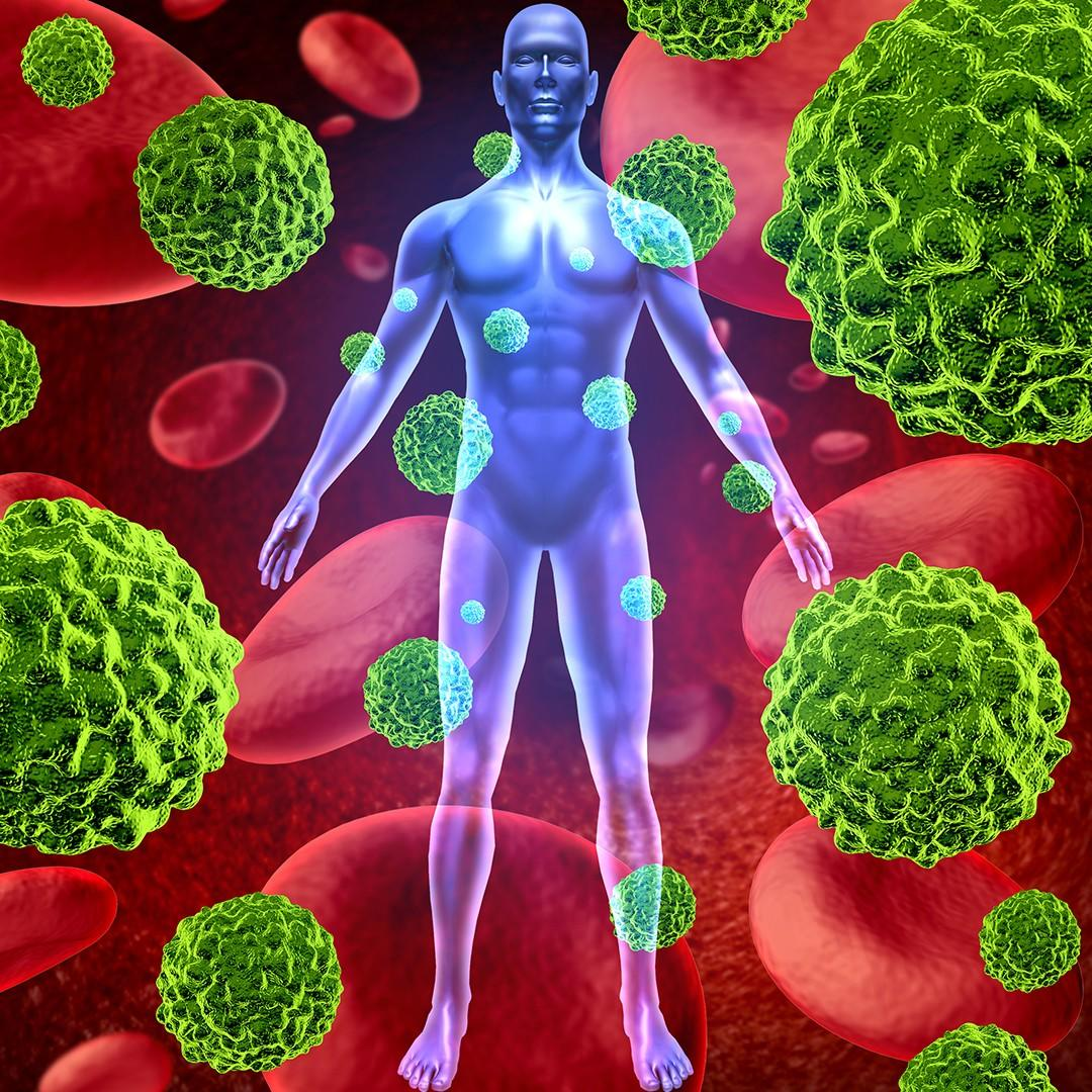 Digital Rendering of Human Body surrounded by cancer cells - Natural Cancer Care Therapy Goals - pureBalance Wellness Cancer Care Mississauga