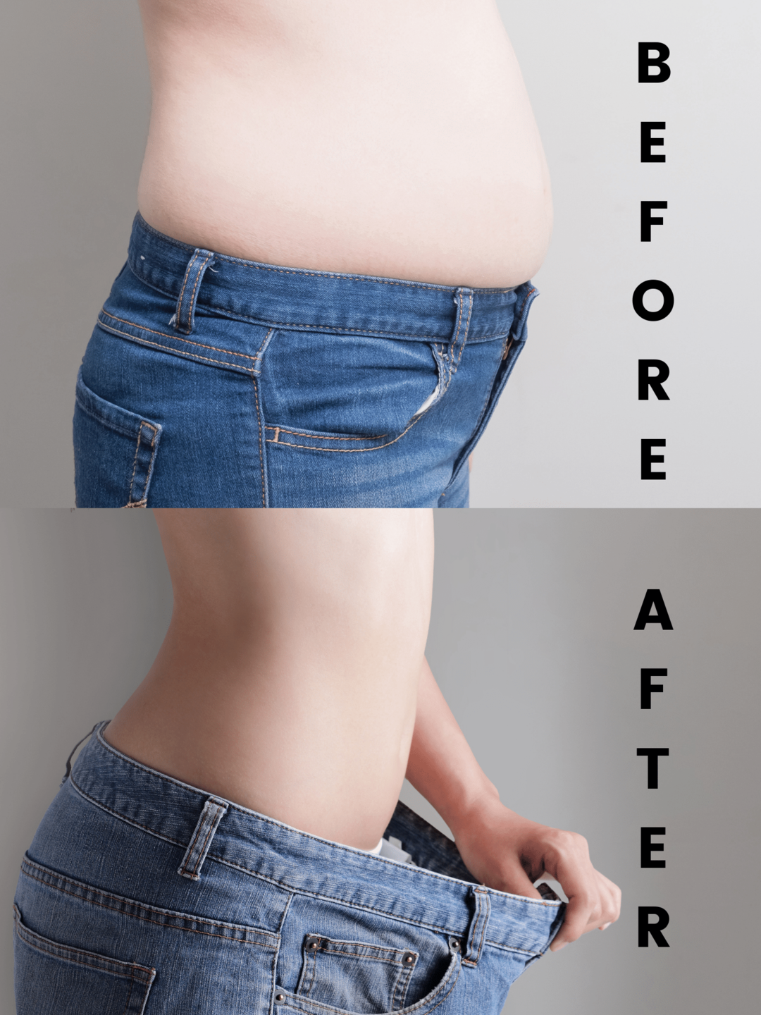 Before & After Tummy Tuck Surgery (Abdominoplasty)