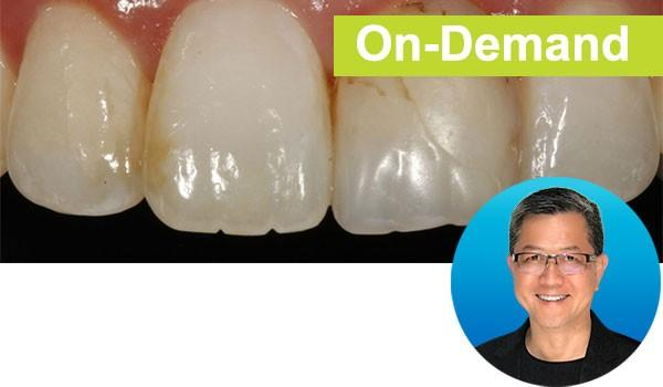 Simple Concepts to Shape & Polish Anterior Composites to Rival Porcelain Instructor: Dr. David Chan, DMD, AAACD | Course Code: DC301