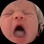 Breastfeeding Tongue Tie