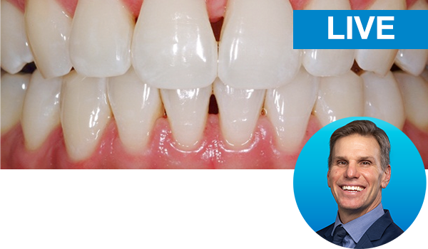 The Direct-Indirect Composite Resin Veneer with Dr. Newton Fahl