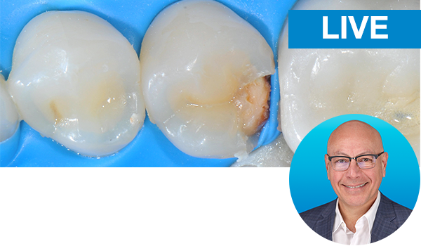 Bulk fill posterior resin composite restorations made easy with Dr. Vargas