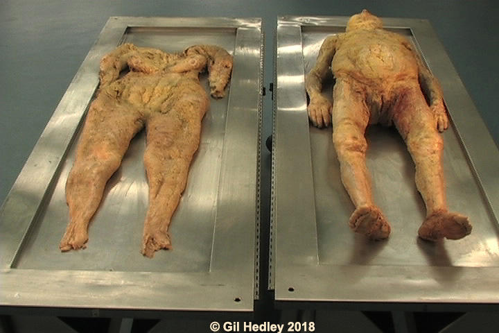 Superficial fascia of a female form dissected off of the body as a singular autonomous organ and laid out on a table alongside the body from which it came.