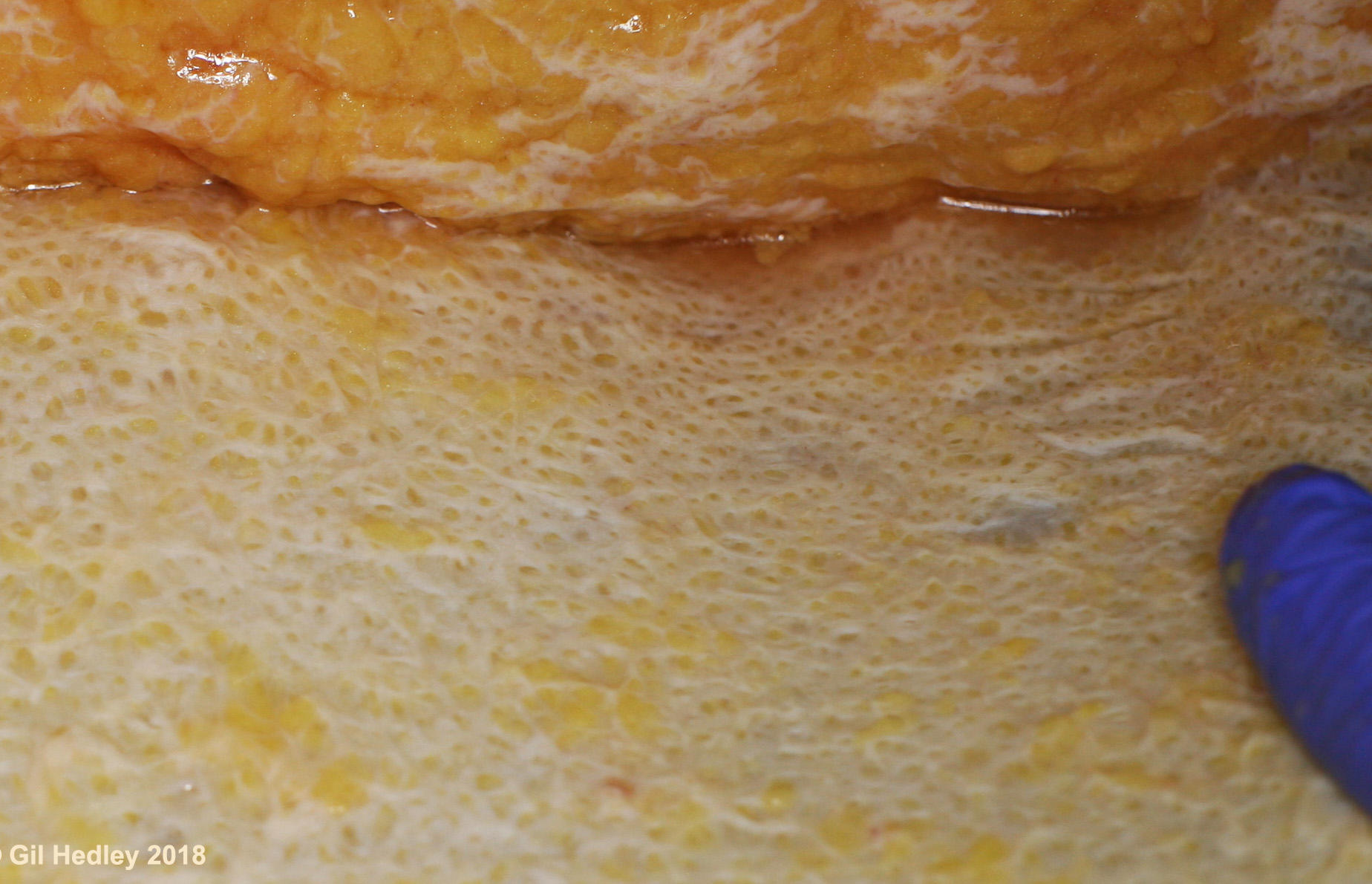 A close up image of the underside of a swath of human skin, showing the connective tissue patterning in the dermis looking similar to the surface of a canteloupe.