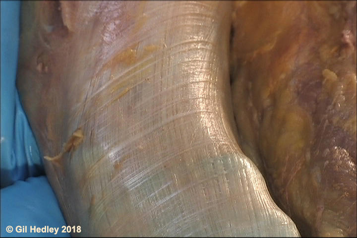 Underside of iliotibial band of deep, regular, fibrous fascia lata is revealed, demonstrating thick triple layer of collagenous fibers highly organized and at right angles to each other.