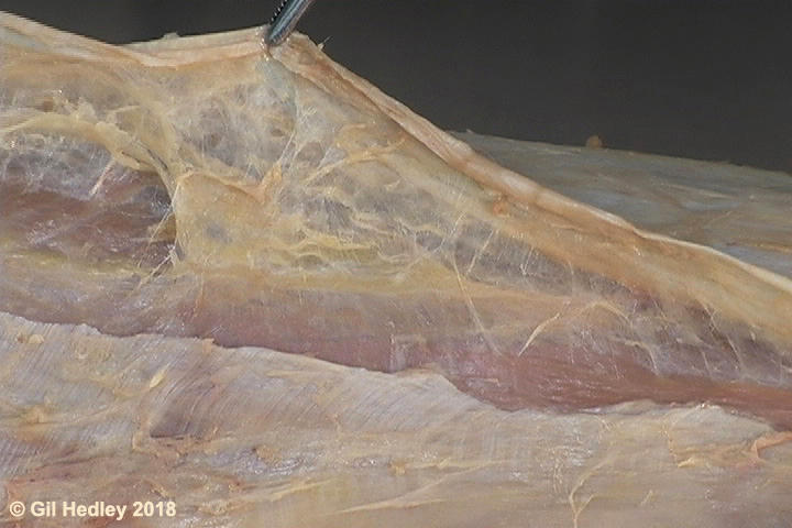 A long longitudinal incision of the fascia lata reflected in tension reveals the underlying felted perifascial membrane being pulled apart, and also reveals the muscle tissue of the quadriceps femoris underlying it.