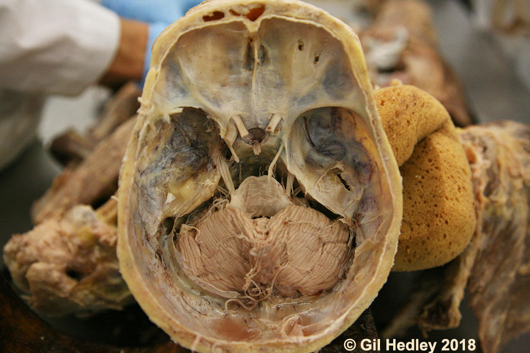 Straight on view of bottom portion of cranial vault with tentorium cerebelii removed, demonstrating the cerebellum in situ with its vermis evident along with the trigeminal and several other cranial nerves. Copyright Gil Hedley 2018.